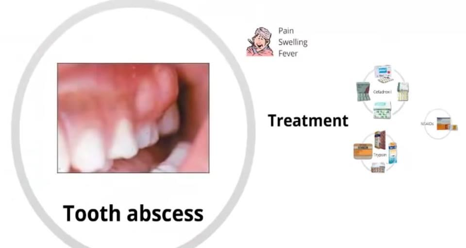 OTC Casese - GIT Tooth Abcess